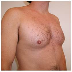 What You Need to Know About Bilateral Gynecomastia